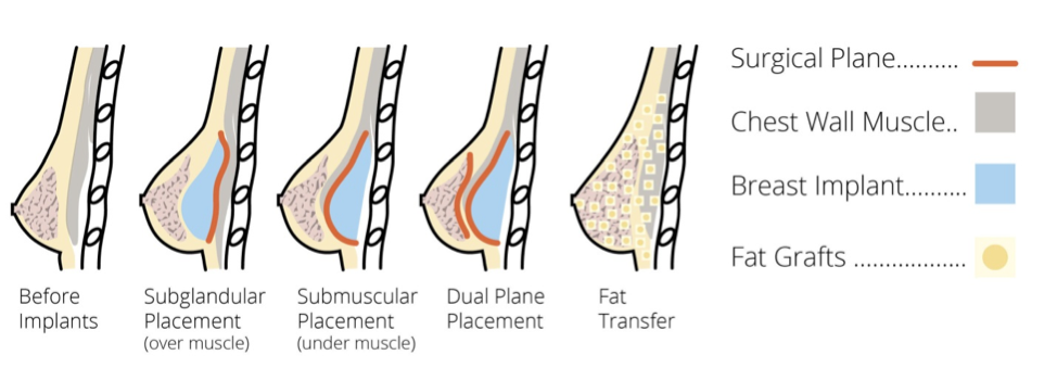 fat transfer and other breast augmentation methods illustration