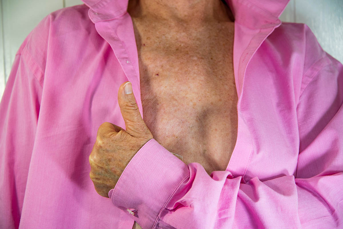 senior womans after partial mastectomy